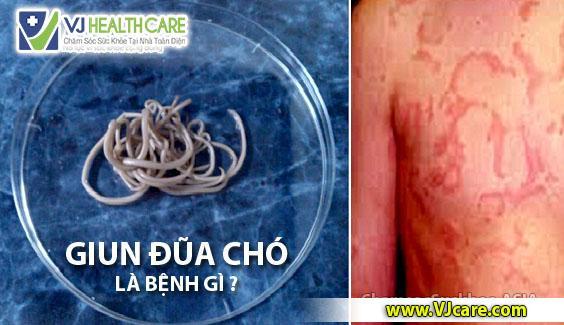 giun đũa chó là gì giun đũa chó có nguy hiểm không ASIA Health