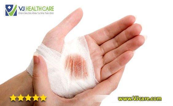 thay băng vết thương cách thay băng vết thương nguyên tắc chăm sóc vết thương