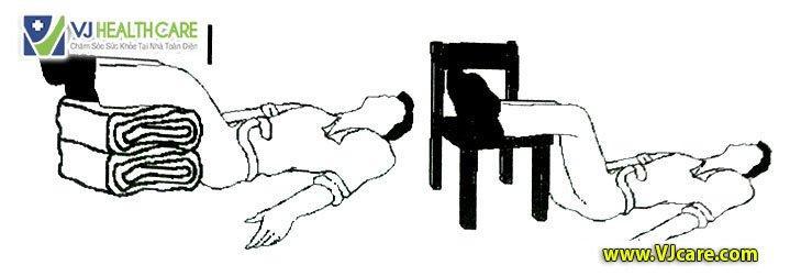 Tư thế an toàn cho bệnh nhân cấp cứu Tư thế nằm ngửa chân cao 2