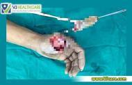 Nổ bình ga mini, một nam thanh niên ở Hà Nội đứt rời ngón tay