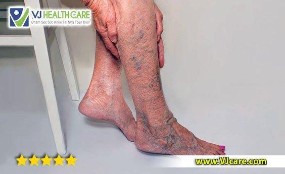 suy giãn tĩnh mạch chân giãn tĩnh mạch chân suy giãn tĩnh mạch chi dưới  Suy giãn tĩnh mạch chân là gì? Có nguy hiểm không ? suy gi  n t  nh m   ch ch  n gi  n t  nh m   ch ch  n suy gi  n t  nh m   ch chi d     i