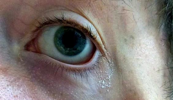 tai sao lai co gi mat khi ngu day  Vì sao mắt chúng ta có gỉ (ghèn) sau khi ngủ dậy? tai sao lai co gi mat khi ngu day