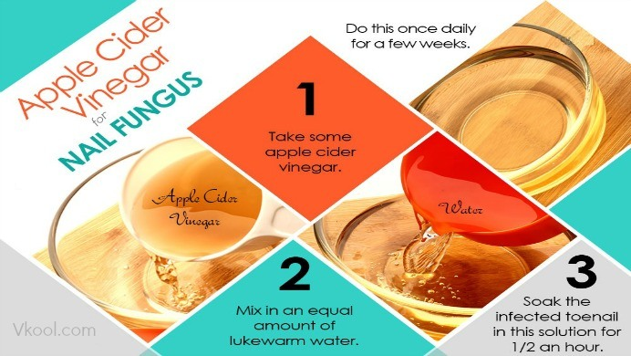 12 Useful Ways To Use Apple Cider Vinegar For Nail Fungus