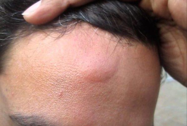 Вот как лечить липомы шишки на коже в домашних условиях