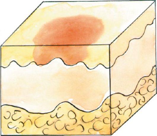 varicoză cu hematomami