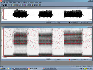 spect_spectrogramcomplete_300