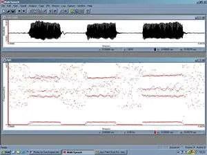 spect_spectrogramformanthistory_300