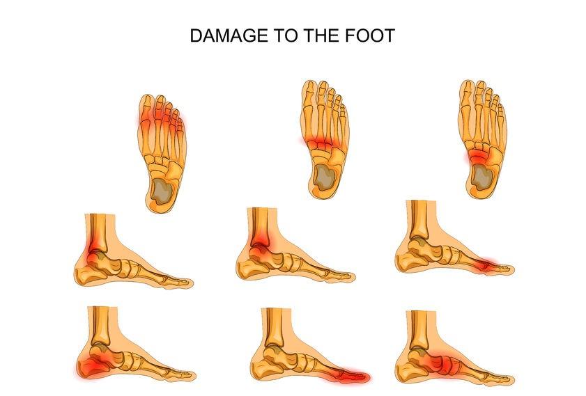 stijve en pijnlijk voeten