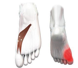 Scheve grote tenen