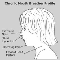 Chronic Mouth Breather