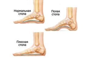 picioare plate cu artroză tratament de 2 grade kurpatov înseamnă osteochondroză