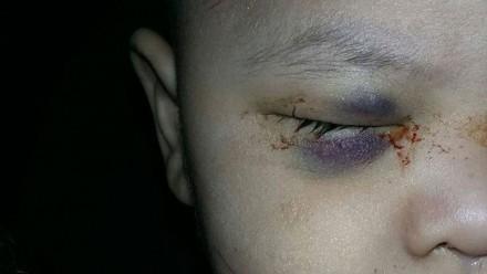 Negligencia médica en el IMSS: Extirpan ojo sano a un niño
