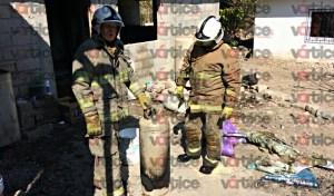 Niño resulta con quemaduras graves tras flamazo en su vivienda