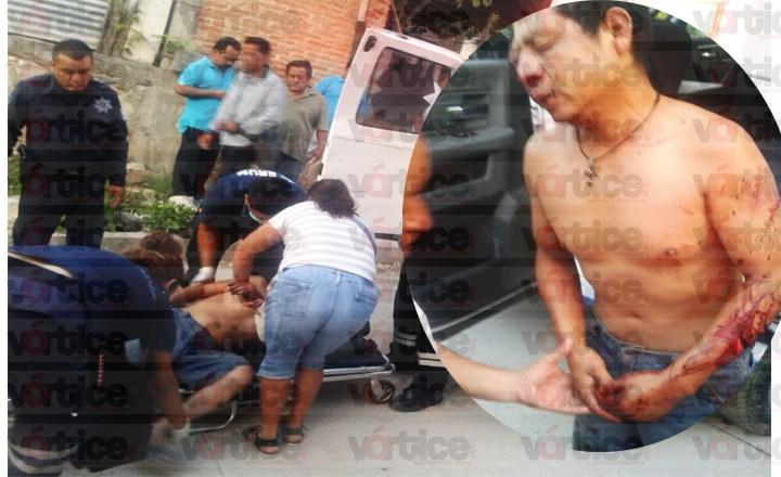 Entraron a asaltar su vivienda y tras oponer resistencia fue macheteado