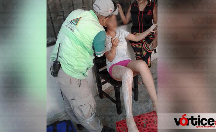 'Flamazo' quema a una jovencita en la colonia La Misión