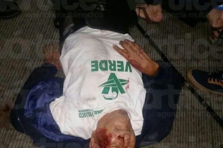 Anciano queda con fracturas en las piernas y el hombro tras ser atropellado