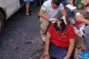 Colectivo le arranca parte del cuero cabelludo a quincuagenaria