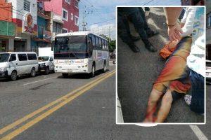 Autobús pasa sobre ancianita y casi le amputa el pie