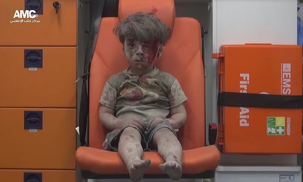 """""""This is Omran. He's alive. We wanted you to know."""" But the mental scars will last the rest of his young life."""