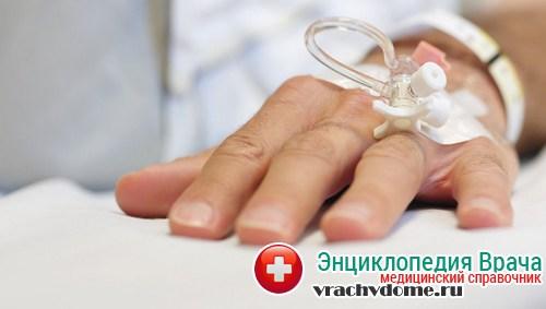 слабость признак скорой смерти онкобольных