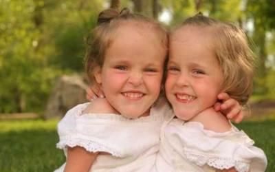 Сиамски близначки ги разделят