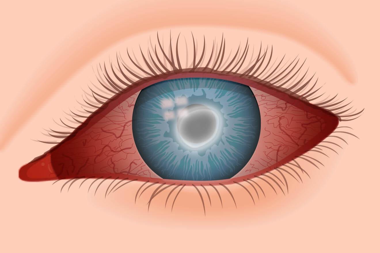 Tratamentul cu ochi roz (conjunctivită) Viziune după conjunctivită