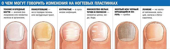 Как в домашних условиях удалить грибок ногтей
