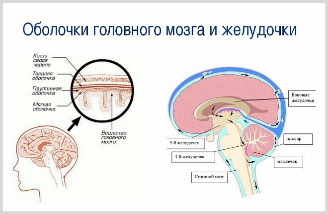Последствия расширения желудочков головного мозга. Асимметрия боковых желудочков мозга у новорожденного ребенка — страхи мнимые и реальные
