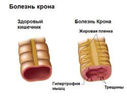Гастроэнтероколит у детей - причины, симптомы и лечение