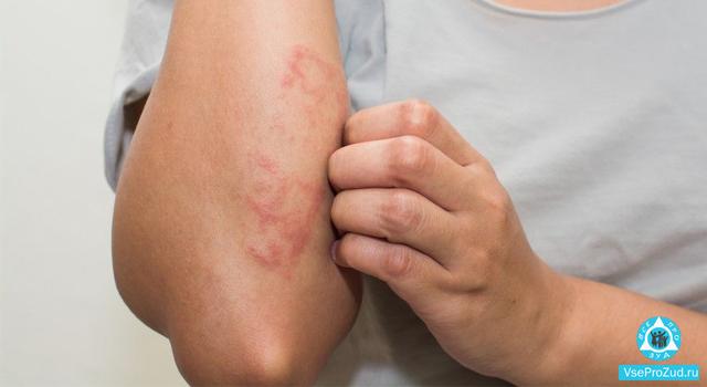 Средства от раздражения кожи лица