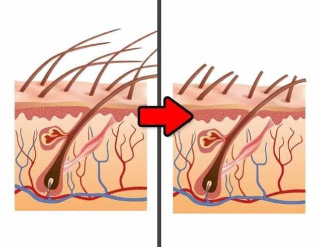 Волосы после бритья становятся толще