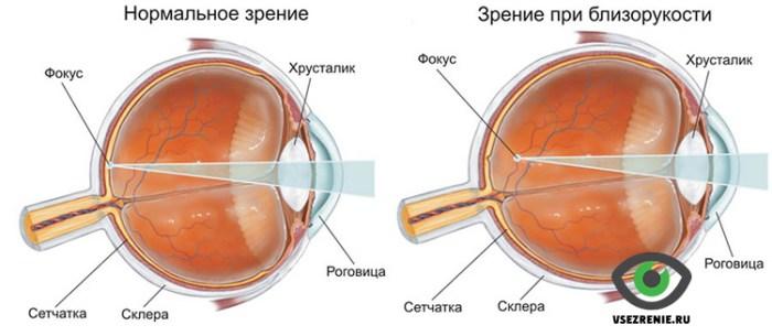 Зрение профилактика и лечение современным способом