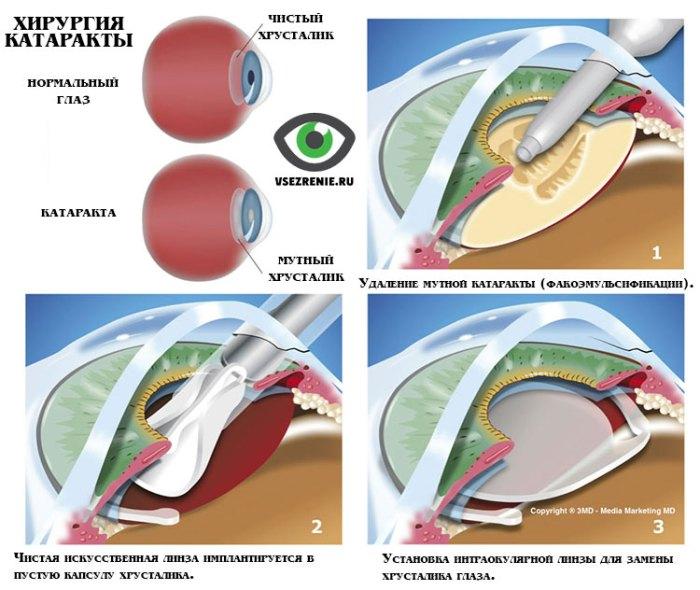 Замена поврежденного хрусталика наинтраокулярныелинзы
