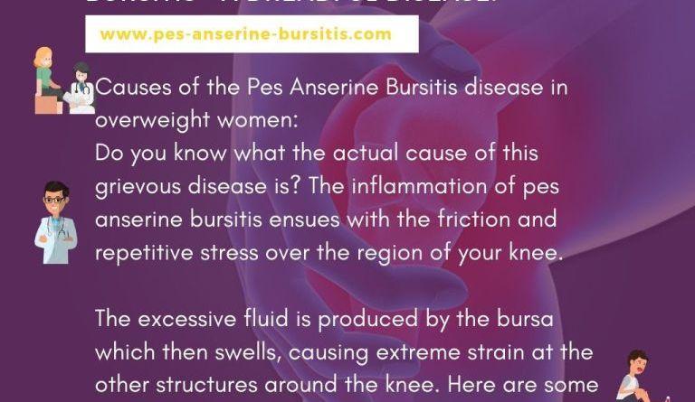 Guide to Pes Anserine Bursitis – A dangerous disease!
