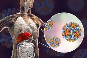 v-vha_vietnam_viral_hepatitis_alliance_liver_hepatitis3