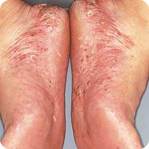 掌蹠膿疱症(しょうせきのうほうしょう)