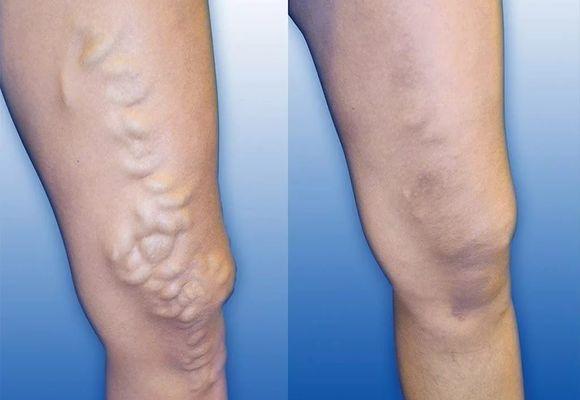 Уплотнение на вене: как избавиться от узлов на ногах. Каковы причины появления варикозных шишек на ногах и как их лечить