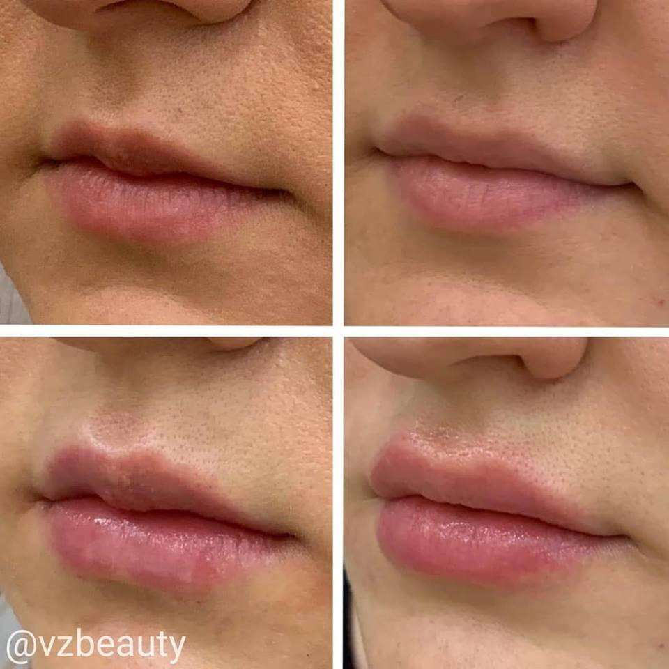 Увеличения губ