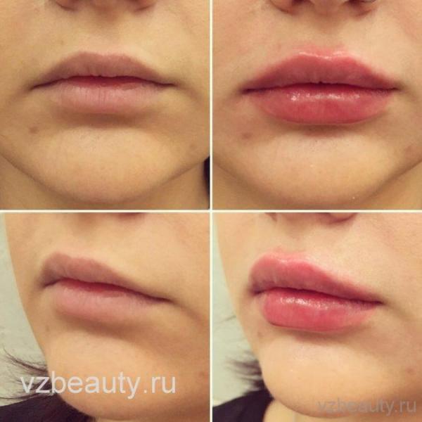 Увеличение губ vzbeautyru
