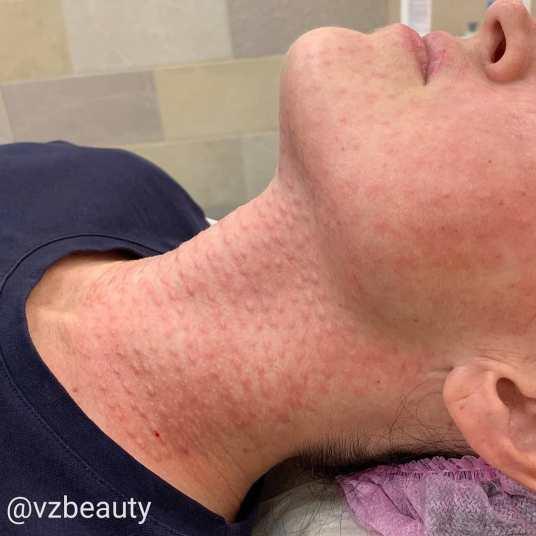 биоревитализация шеи лица
