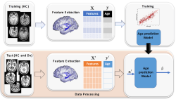 Gaussian process uncertainty in age estimation as a measure of brain abnormality