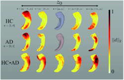Learning a Conditional Generative Model for Anatomical Shape Analysis