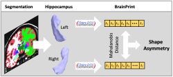 Increased Hippocampal Shape Asymmetry and Volumetric Ventricular Asymmetry in Autism