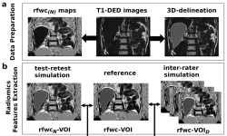 MRI-Derived Radiomics Features of Hepatic Fat Predict Metabolic States in Individuals without Cardiovascular Disease