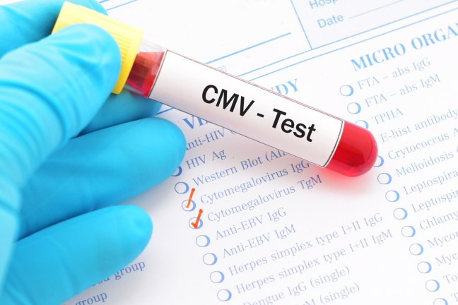 Blood sample with requisition form for cytomegalovirus (CMV) test