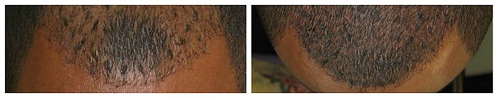 Cosmetic tattooing for men: Permanent Hairline Men