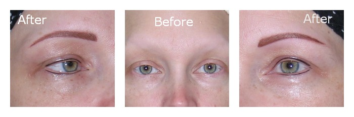 Hairstroke Eyebrows Before After
