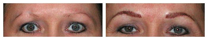 Scar Repair Permanent Makeup