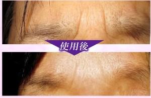 の しわ 眉間 眉間のシワをとりたい!眉間のシワを消す解消方法を一挙公開