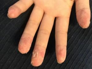 手汗がひどくて皮がめくれる